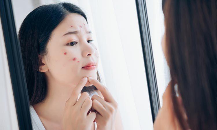 Penyebab Jerawat Nodul Pada Wajah Dan Cara Mengatasinya Eva Mulia Clinic