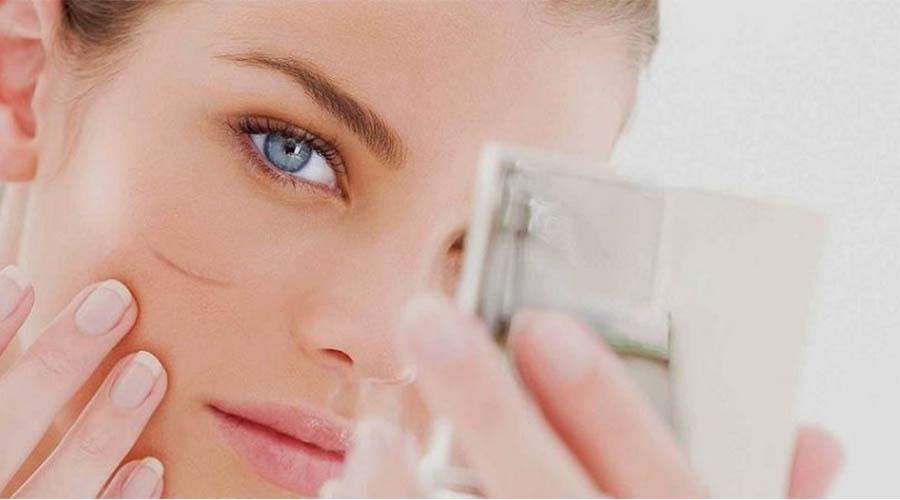 manfaat klorofil untuk kulit