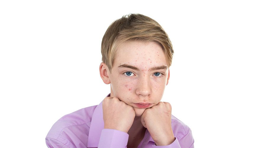 penyebab jerawat pada anak