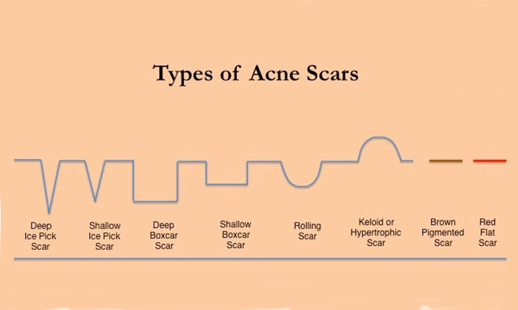 scar jerawat