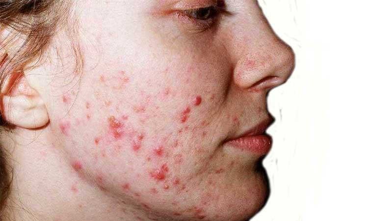 klinik eva mulia - acne vulgaris adalah