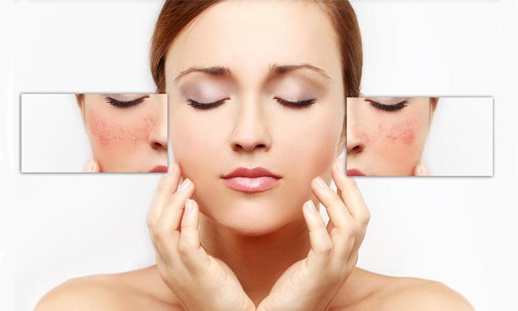 Dr. Eva mulia - kulit sensitif