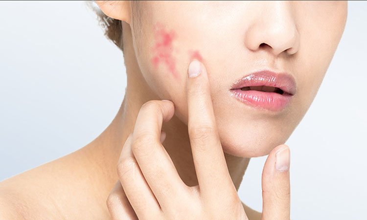 kondisi kulit sensitif