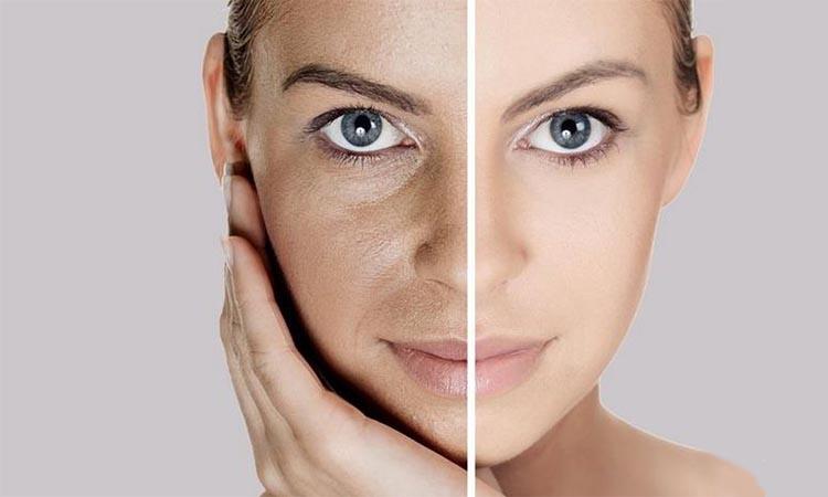 penyebab kerusakan kulit