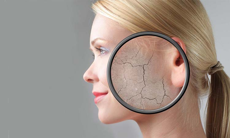 Eva Mulia - penyebab kerusakan kulit