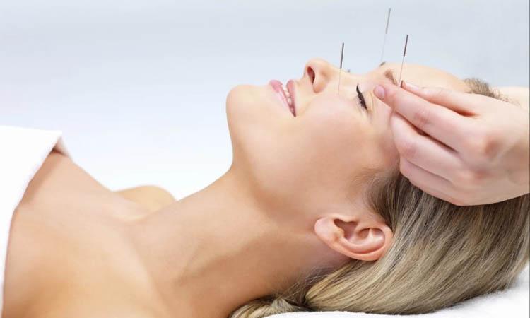 Eva Mulia Clinic - manfaat akupuntur wajah