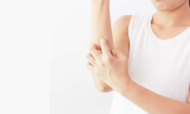 Eva Mulia - penyakit kulit akibat bakteri kulit