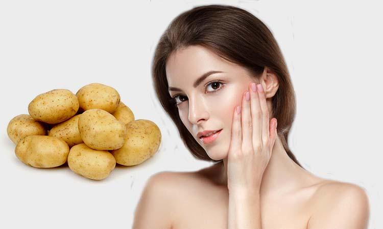 manfaat kentang untuk jerawat