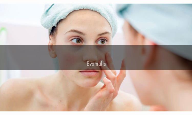 Evamulia - Ciri Skincare tidak cocok - Alergi Skincare - Mencari produk skin care yang sesuai di kulit tidak semudah yang dibayangkan. Dari ratusan bahkan