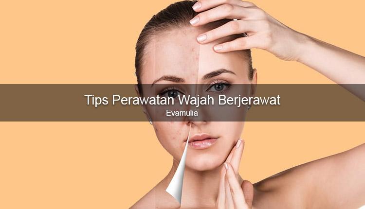 Klinik Kecantikan - Evamulia - Perawatan wajah - wajah berjerawat - Memiliki kulit wajah yang mudah berjerawat memang perlu bersabar. Pasalnya, salah sedikit saja dalam merawatnya jerawat dapat langsung tumbuh menghiasi wajah