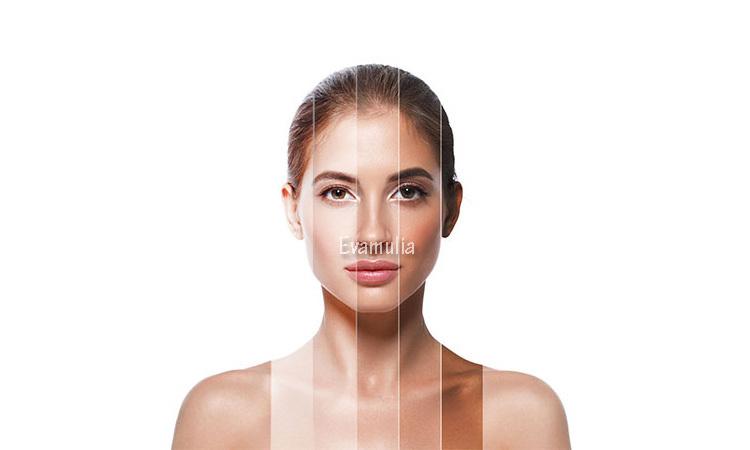 Eva mulia - klinik eva mulia - tips perawatan wajah -perawatan kulit - mengatasi kulit belang - Beberapa penyebab kulit belang yaitu karena sering berjemur atau berenang.