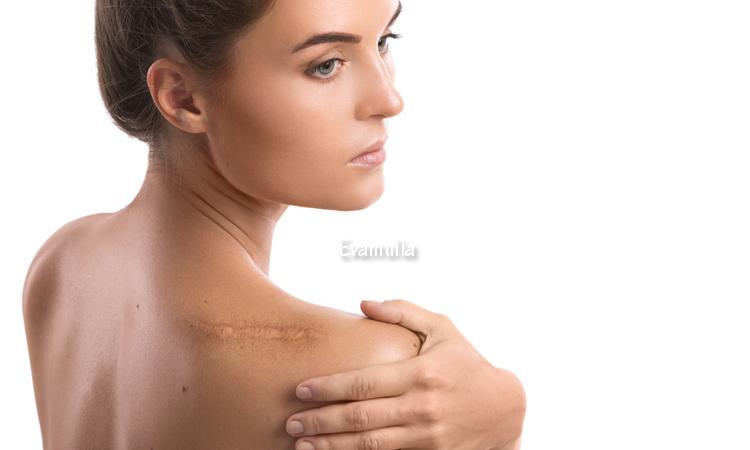 Klinik Eva Mulia - Perawatan Wajah - Penyebab dan Cara Menghilangkan Keloid - Keloid merupakan salah satu jenis luka yang mengganggu penampilan karena bentuknya yang tebal serta memiliki kontras warna dengan kulit disekitar-nya. Keloid bisa muncul pada bekas luka di sekiatr tubuh manapun.