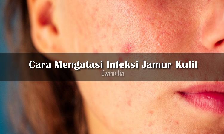 Eva Mulia - Klinik Evamulia - Cara mengatasi infeksi jamur kulit - Perawatan Wajah - Beberapa orang pernah mengalami infeksi kulit yang disebabkan oleh jamur. Infeksi jamur pada kulit dapat terjadi pada semua usia, baik pria atau wanita dan merupakan infeksi yang paling umum.