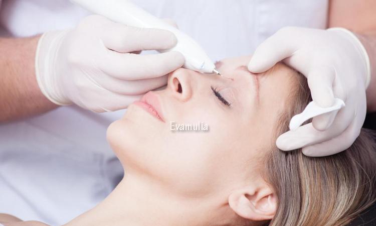 Eva Mulia - Klinik Evamulia - Perawatan Wajah - Cara Menghilangkan Bercak Coklat di Wajah - Mempunyai wajah yang halus dan bersih pastinya menjadi dambaan untuk wanita maupun pria. Sayangnya, ada banyak faktor yang dapat membuat kulit wajah kalian mengalami masalah, seperti bercak coklat pada kulit wajah.