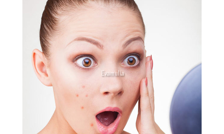 Eva Mulia - Klinik Evamulia - Perawatan Wajah - Jerawat Menstruasi Dan Cara Mnegatasinya - Penyebab jerawat saat menstruasi adalah hormon estrogen dan hormon testosteron yang berkembang selama masa haid tersebut. Ketika menstruasi mulai dialami oleh remaja putri yang sudah mulai menginjak usia dewasa.