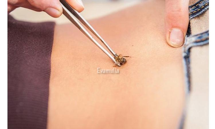 Eva Mulia - Klinik Evamulia - Perawatan Wajah - Manfaat Terapi Sengat Lebah - Ternaya disengat lebah tidak selalu merugikan kalian karena rasa nyeri yang ditimbulkan sengatan lebah. Sengatan lebah kini juga dijadikan terapi untuk beberapa kondisi kesehatan tertentu. Terapi sengat lebah adalah jenis terapi alternatif yang menggunakan sengatan lebah pada titik tertentu di tubuh.