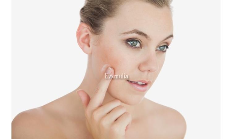 Eva Mulia - Klinik Evamulia - Perawatan Wajah - Hydroquinone Pencerah Wajah Yang Dilarang - Salah satu bahan pencerah wajah hydroquinone kini resmi tidak boleh digunakan lagi. Pada dasarnya, kandungan ini dipercaya efektif untuk mengatasi hiperpigmentasi, tetapi memang sangat keras bagi kulit.