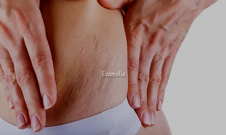 Eva Mulia - Klinik Evamulia - Perawatan Wajah - Stretch Mark - Stretch Mark adalah bagian tubuh tertentu berupa garis-garis atau guratan di perut, dada, pinggul, bokong serta paha. Meskipun tidak berbahaya, akan tetapi dapat mengganggu penampilan. Untuk menghilangkannya kalian perlu menggunakan cara yang tepat.