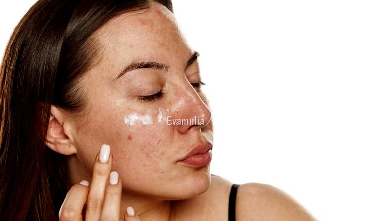 Eva Mulia - Klinik Evamulia - Perawatan Wajah - Cara Menutupi Jerawat - Ada banyak cara yang bisa membantu kalian mengurangi jerawat. Perhatikan dan perbaiki pola makan, rutin membersihkan wajah dengan cara double cleansing dan pilih produk pembersih yang tepat. Selain itu, kalian juga bisa menyamarkan jerawat dengan makeup.