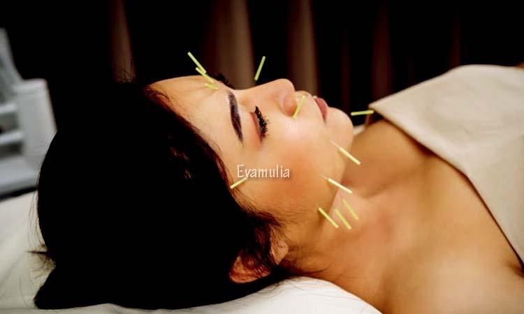 Eva Mulia - Perawatan Wajah - Akupuntur Untuk Kulit - Metode dalam pengobatan akupuntur sudah ada sejak berabad-abad lalau dan terhitung aman dilakukan karena sudah diakui WHO. Sebagi pengobatan tradisional Tiongkok, pengoobat ini membantu mengobati beberapa penyakit.