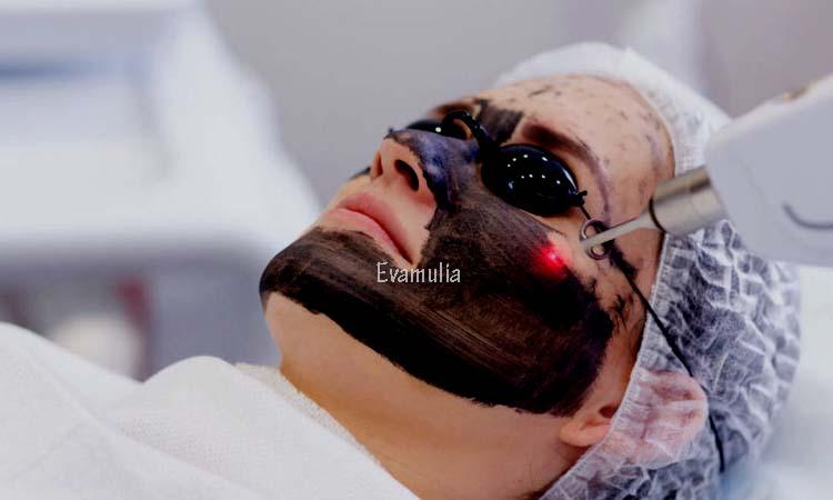 Evamulia - Perawatan Wajah - Fakta Perawatan Laser Untuk Menghilangkan Bekas Jerawat - Seperti yang kita ketahui, bahwa masalah umum pada kulit wajah adalah jerawat dan bekas jerawat. Jika bertanya mengenai cara terampuh untuk menghilangkan bekas jerawat, perawatan laser adalah jawaban yang paling banyak ditemukan.