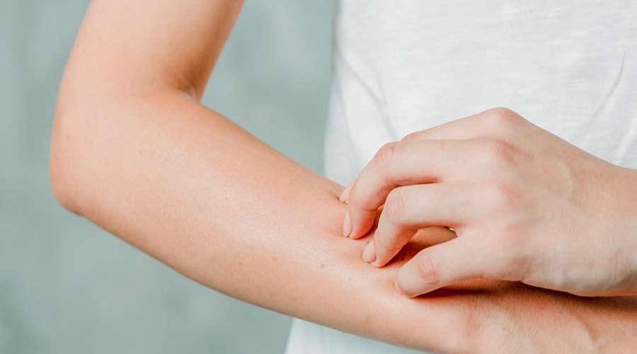 Mengenal Dermatitis Atopik