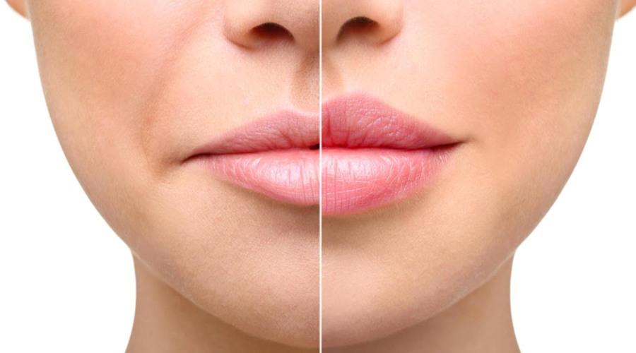Tips Menipiskan Bibir dengan Cepat dan Aman