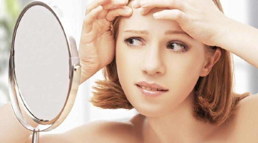 Cara Mengatasi Blind Pimple