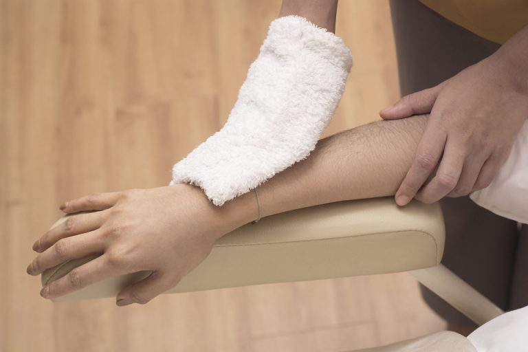 Hair removal lower arms with IPL