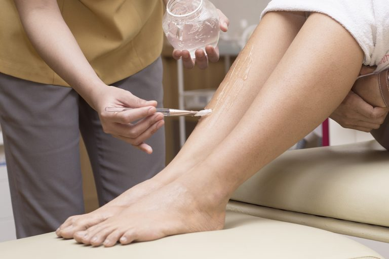 Hair removal lower leg with IPL