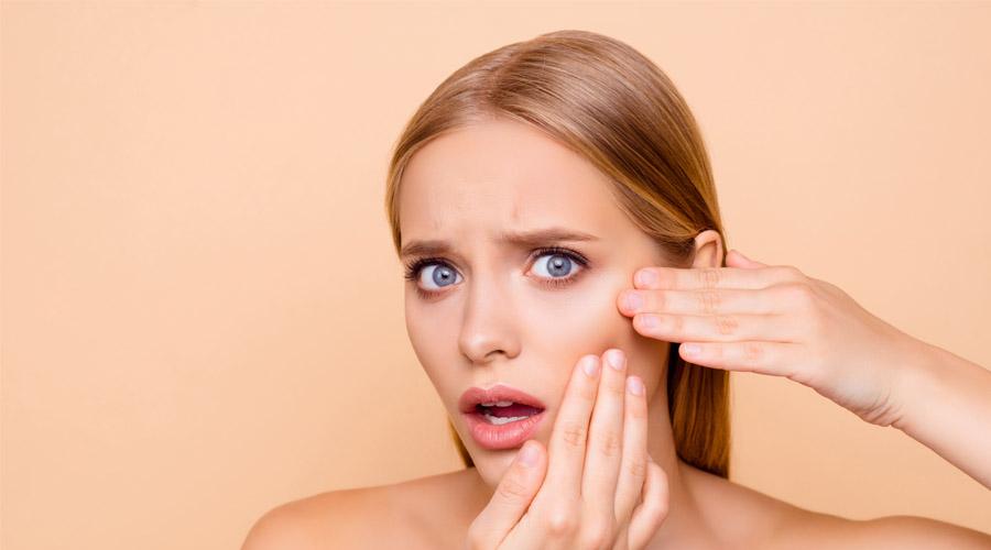 Tips Atasi Breakout Karena Mencoba Skincare Baru