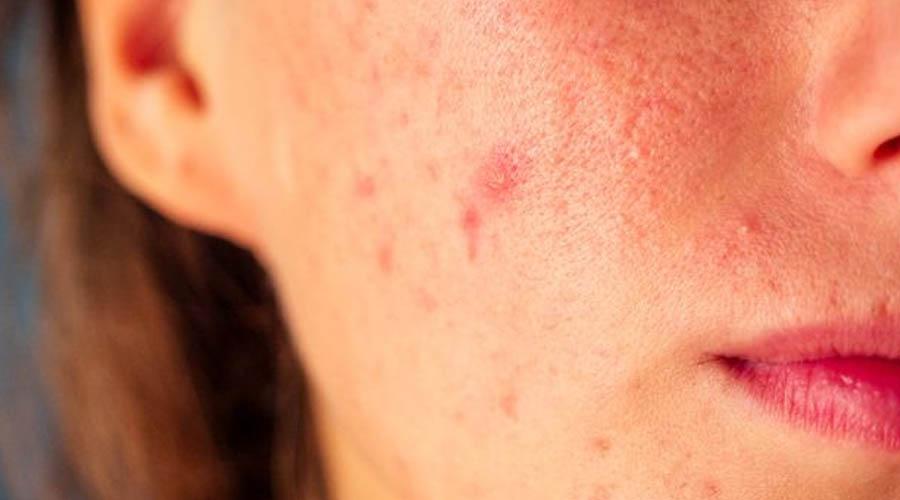 Tips Hilangkan Bintik Merah Seperti Jerawat