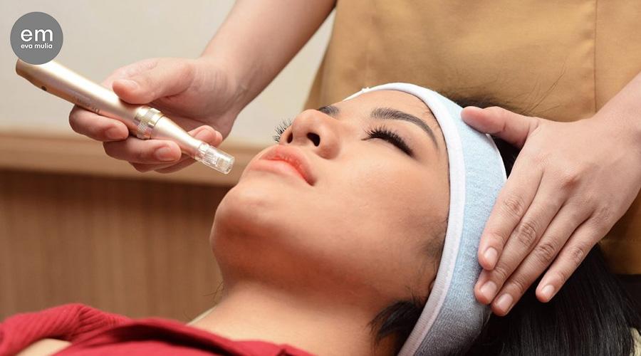 Dermapen For Acne Scars