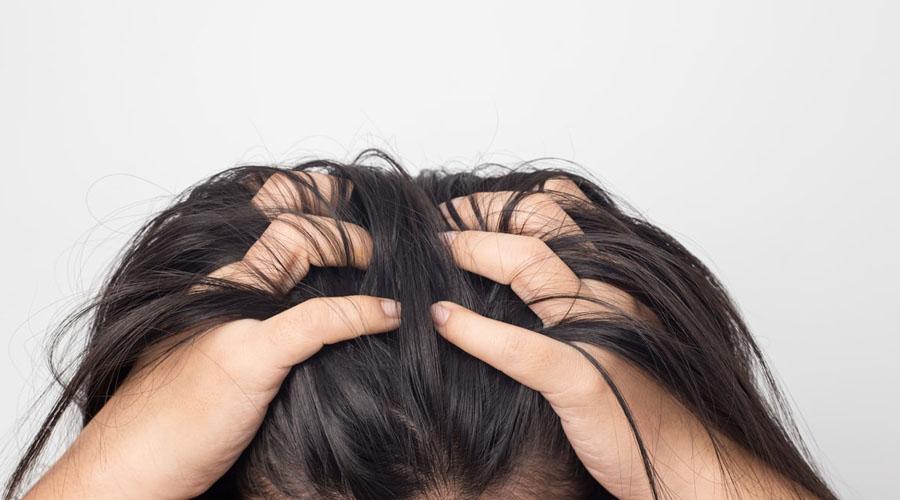 Penyebab Timbulnya Jerawat di Kepala